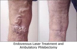 http://cimg8.ibsrv.net/cimg/www.veindirectory.org/258x165_85/208/Endovenous-laser-treatment-and-ambulatory-phlebectomy_EVLT-19208.jpg
