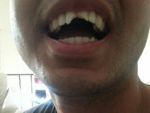 A photo of Hassam Khan's mouth, with his front teeth broken, following an incident with police during which he alleges his head was slammed on the hood of his cousin's car. (Courtesy of Harvey Greenberg)